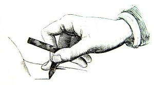 bloodletting_lancet_thumb_illustration_of_use